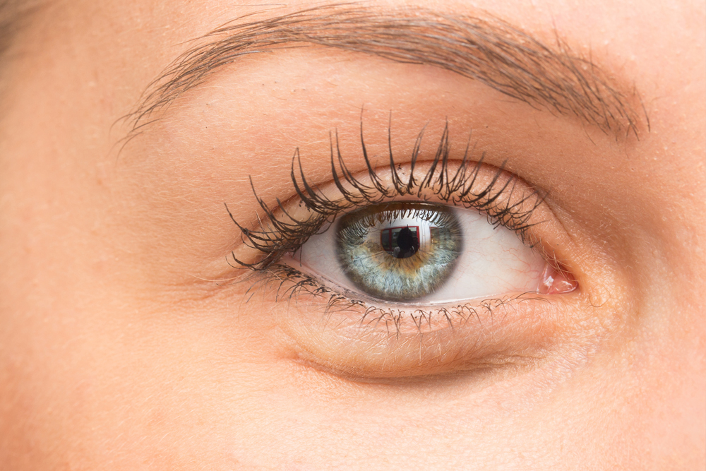 Your Slimming Clinic Bournemouth Cosmetic Treatments Dark Undereye Circles