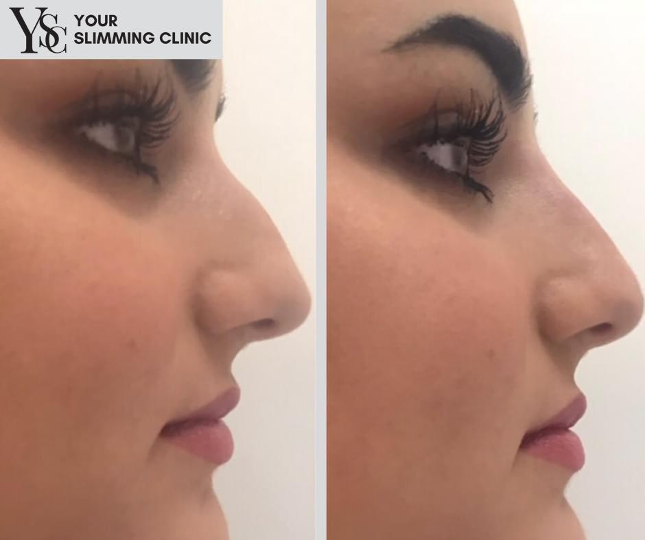 Your Slimming Clinic Bournemouth Liquid Rhinoplasty – Nose Straightening